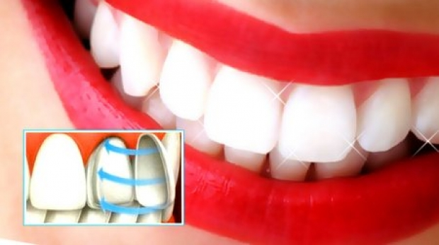 Установка керамических (циркониевых) виниров в стоматологии MegaDent