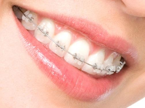 Ортодонтические услуги